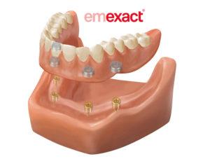 emexact-02slide1400x600